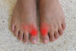 Inflammation in the big toes due to gout.