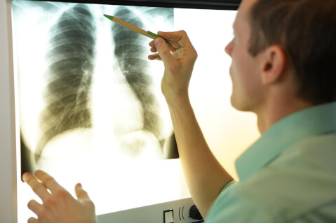 Pulmonary Embolism: What Do You Need to Know?