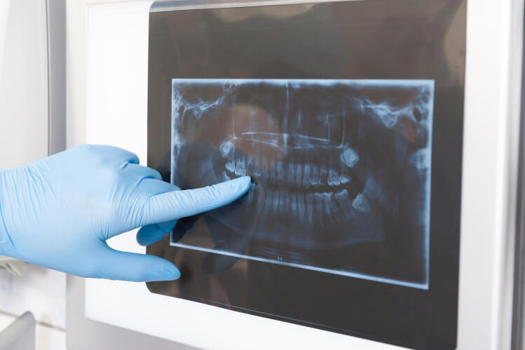 Your Oral Surgeon: A Dental Health Care Specialist