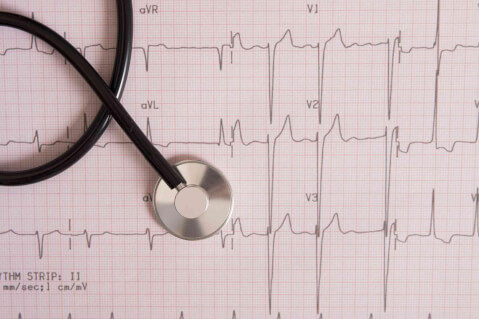 Congestive Heart Failure: What Do You Need to Know?