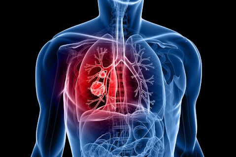 Lung Cancer: What Do You Need to Know?