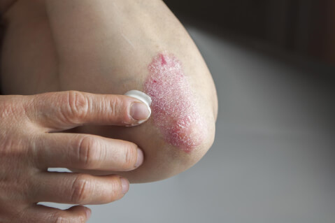 Psoriasis: What Do You Need to Know?