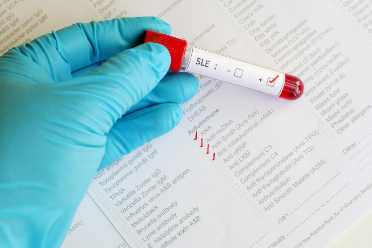 SLE blood test for lupus, the autoimmune disease.